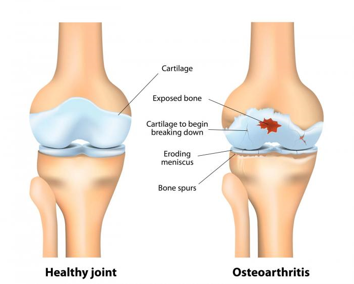 Diagram of a healthy synovial joint vs early stage Osteoarthritis